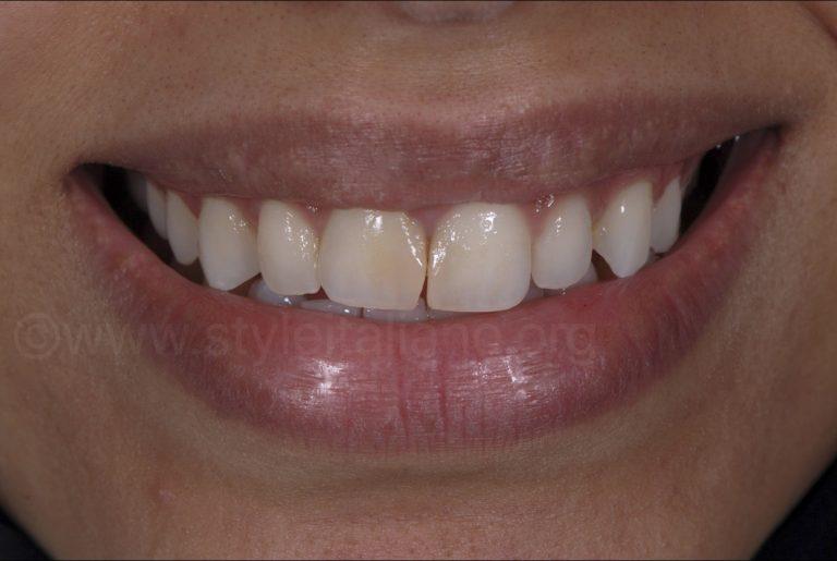 A Smile Makeover – Indirect Lithium Disilicate Veneers & Bleaching style ialiano styleitaliano