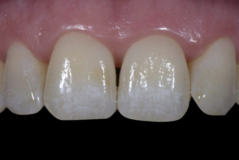 Bleaching and Erosion Infiltration treatment, 6 Years Follow-up style italiano styleitaliano