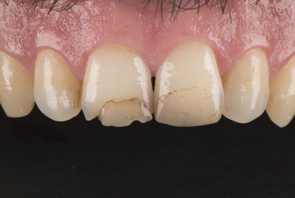Small restorations for big esthetic difference styleitaliano style italiano