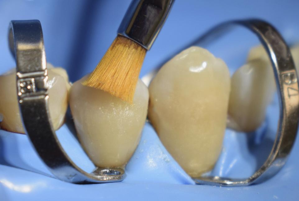 LM Arte instruments style italiano styleitaliano clinical case